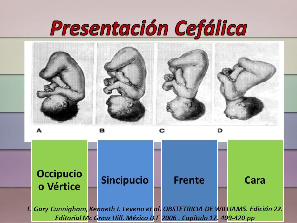 Presentación Cefálica