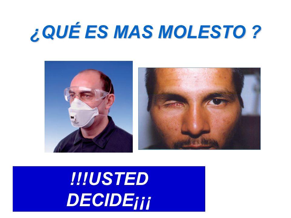 ¿QUÉ ES MAS MOLESTO !!!USTED DECIDE¡¡¡