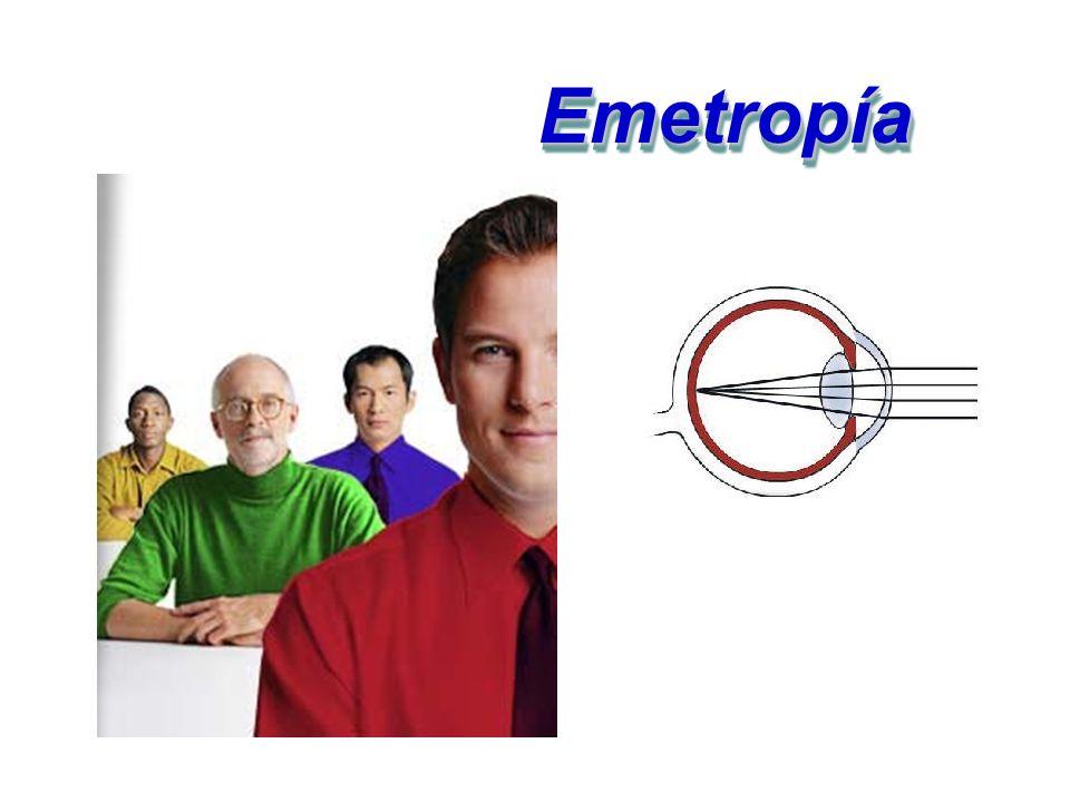 Emetropía Emetropía: Es la visión normal sin problemas de nitidez en la imagen.