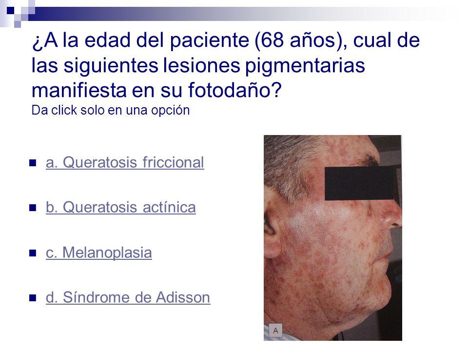 ¿A la edad del paciente (68 años), cual de las siguientes lesiones pigmentarias manifiesta en su fotodaño Da click solo en una opción