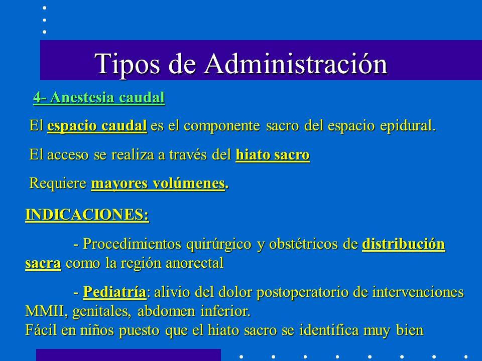 Tipos de Administración