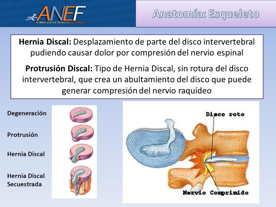 Asombroso Anatomía Del Disco Patrón - Imágenes de Anatomía Humana ...