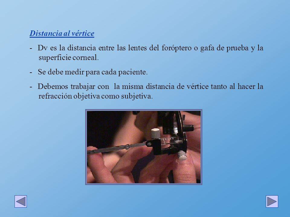 Distancia al vértice Dv es la distancia entre las lentes del foróptero o gafa de prueba y la superficie corneal.