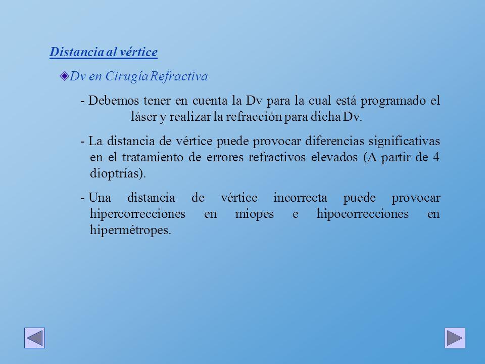 Distancia al vértice Dv en Cirugía Refractiva.