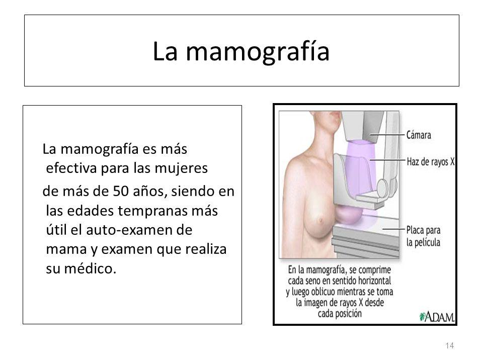 La mamografía La mamografía es más efectiva para las mujeres