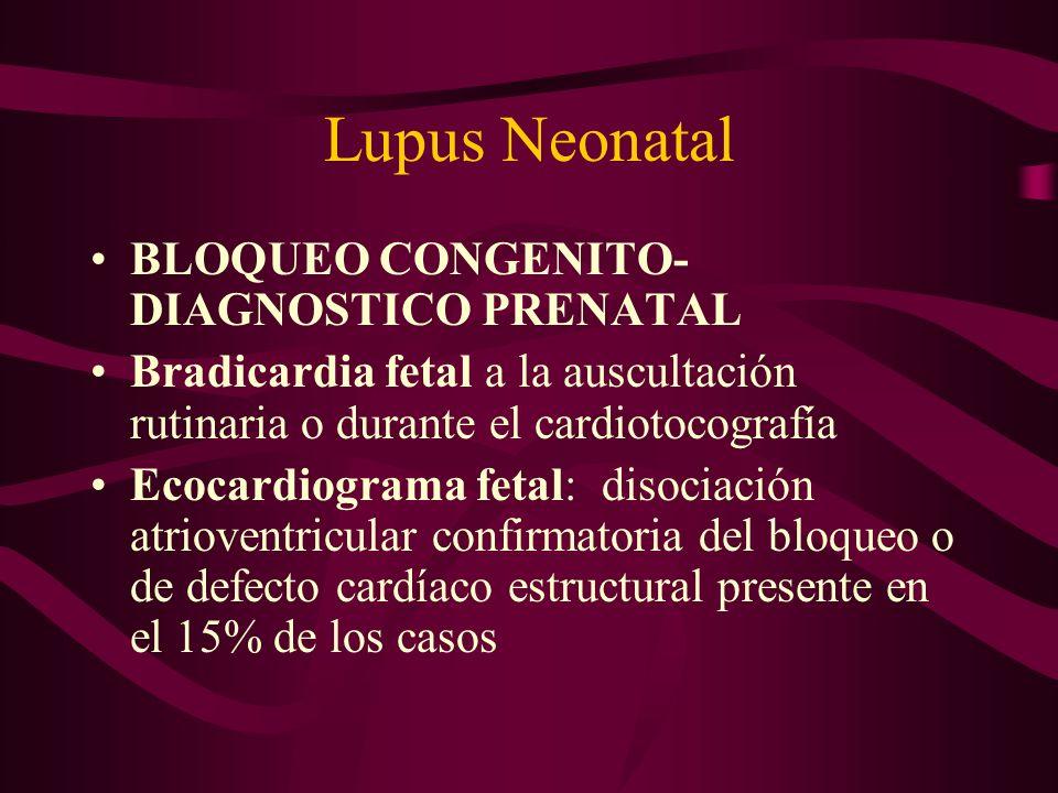 Lupus Neonatal BLOQUEO CONGENITO-DIAGNOSTICO PRENATAL