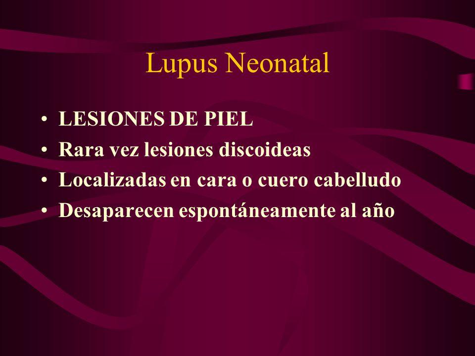 Lupus Neonatal LESIONES DE PIEL Rara vez lesiones discoideas