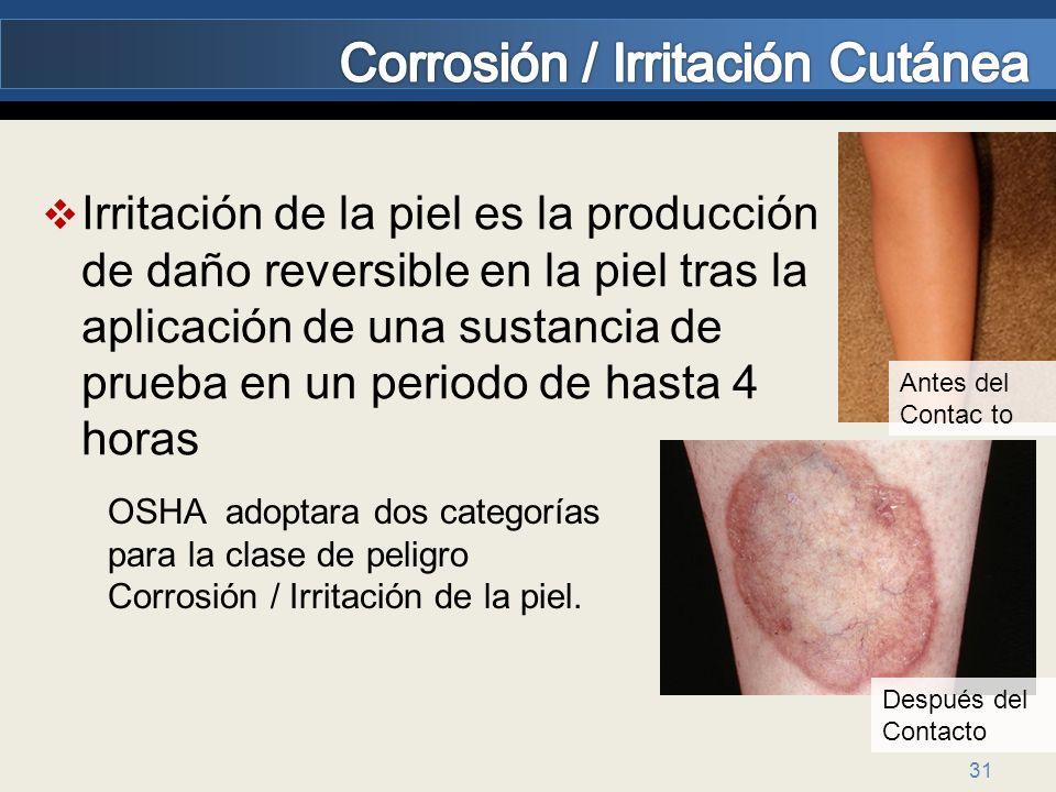 Corrosión / Irritación Cutánea