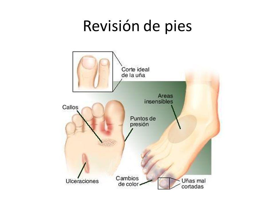 Revisión de pies