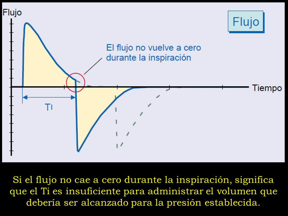 Si el flujo no cae a cero durante la inspiración, significa