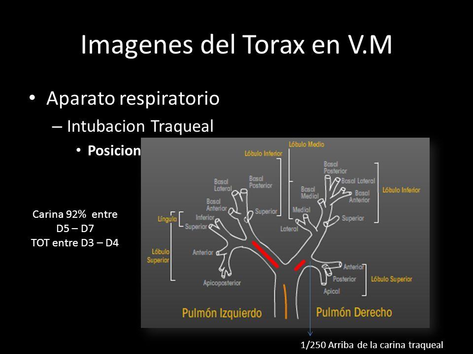 Imagenes del Torax en V.M