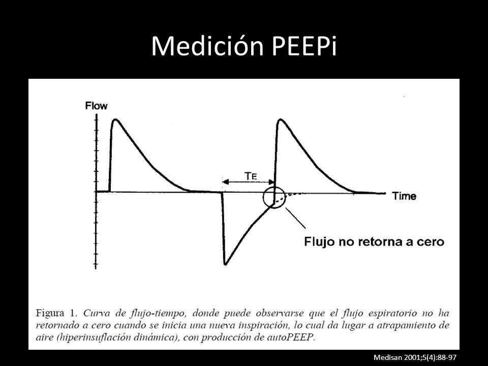 Medición PEEPi Estableciendo una pausa al final de la espiración y estimando en ese momento la presión en las vías aéreas.