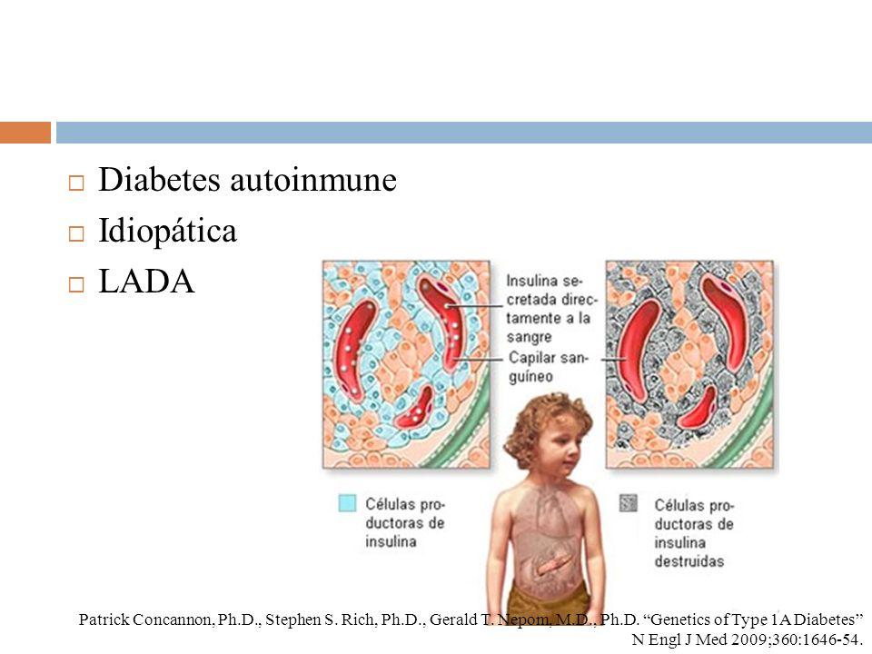 Diabetes autoinmune Idiopática LADA