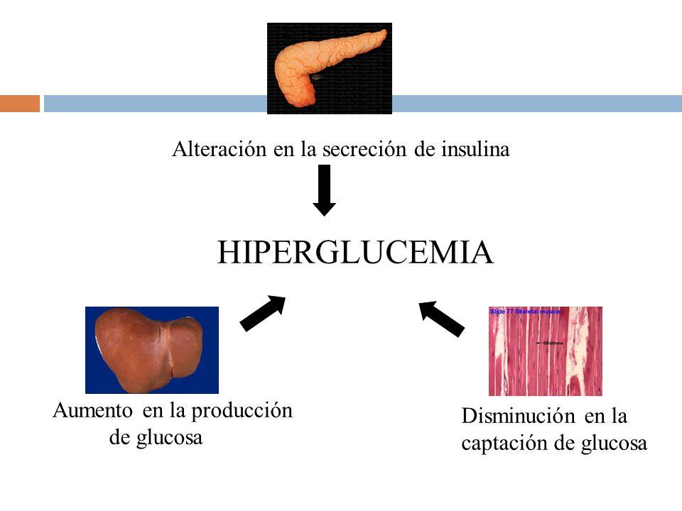 HIPERGLUCEMIA Alteración en la secreción de insulina