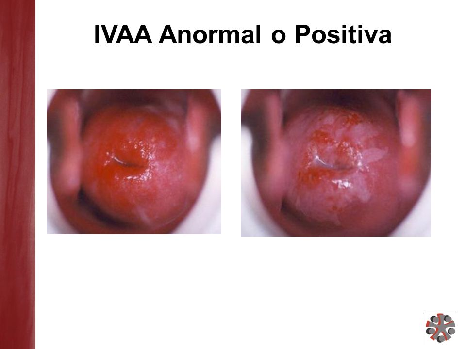 IVAA Anormal o Positiva
