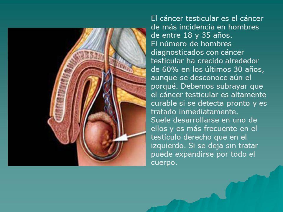 El cáncer testicular es el cáncer de más incidencia en hombres de entre 18 y 35 años.