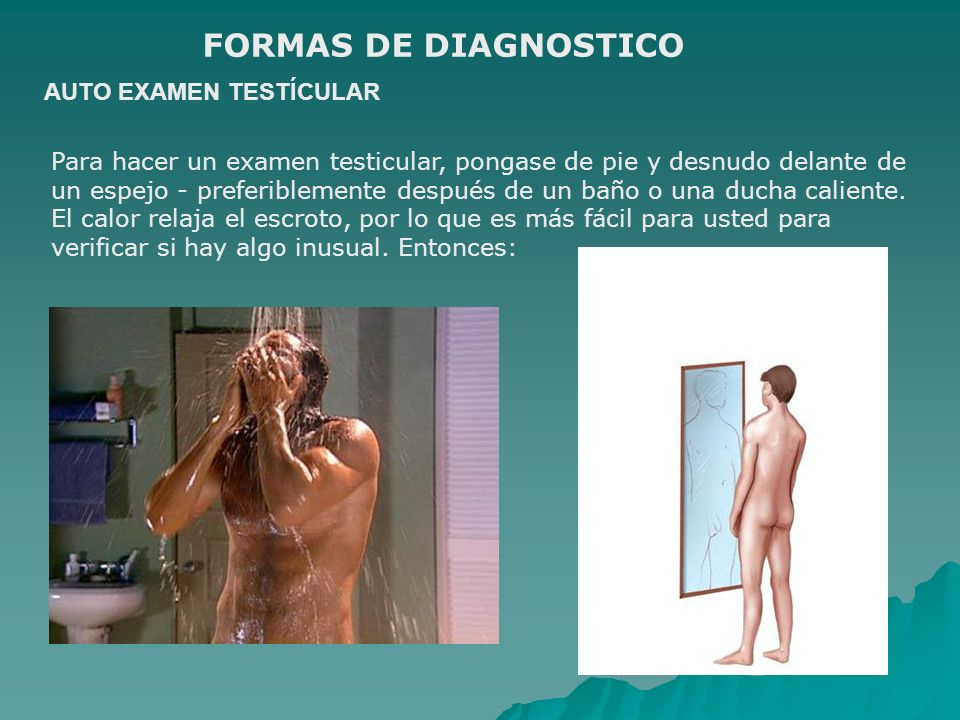 FORMAS DE DIAGNOSTICO AUTO EXAMEN TESTÍCULAR