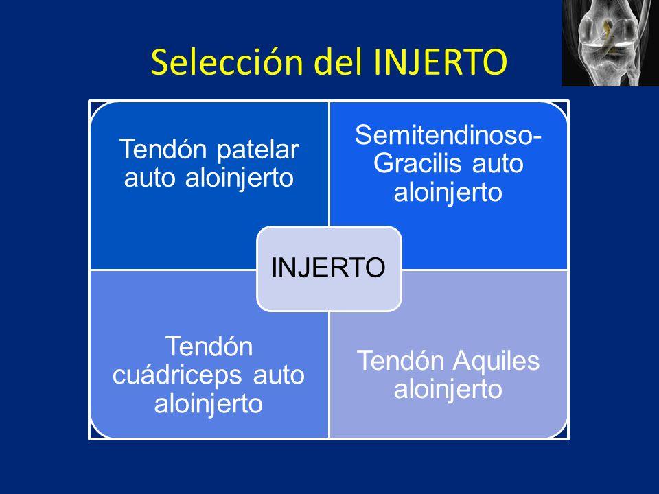 Selección del INJERTO INJERTO Tendón patelar auto aloinjerto