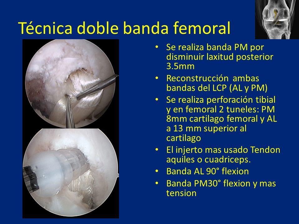 Técnica doble banda femoral