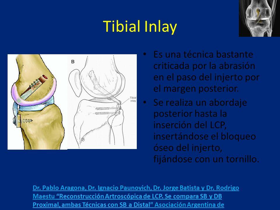 Tibial Inlay Es una técnica bastante criticada por la abrasión en el paso del injerto por el margen posterior.