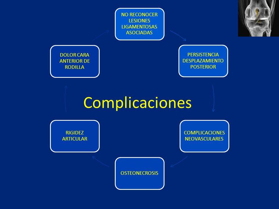 Complicaciones NO RECONOCER LESIONES LIGAMENTOSAS ASOCIADAS