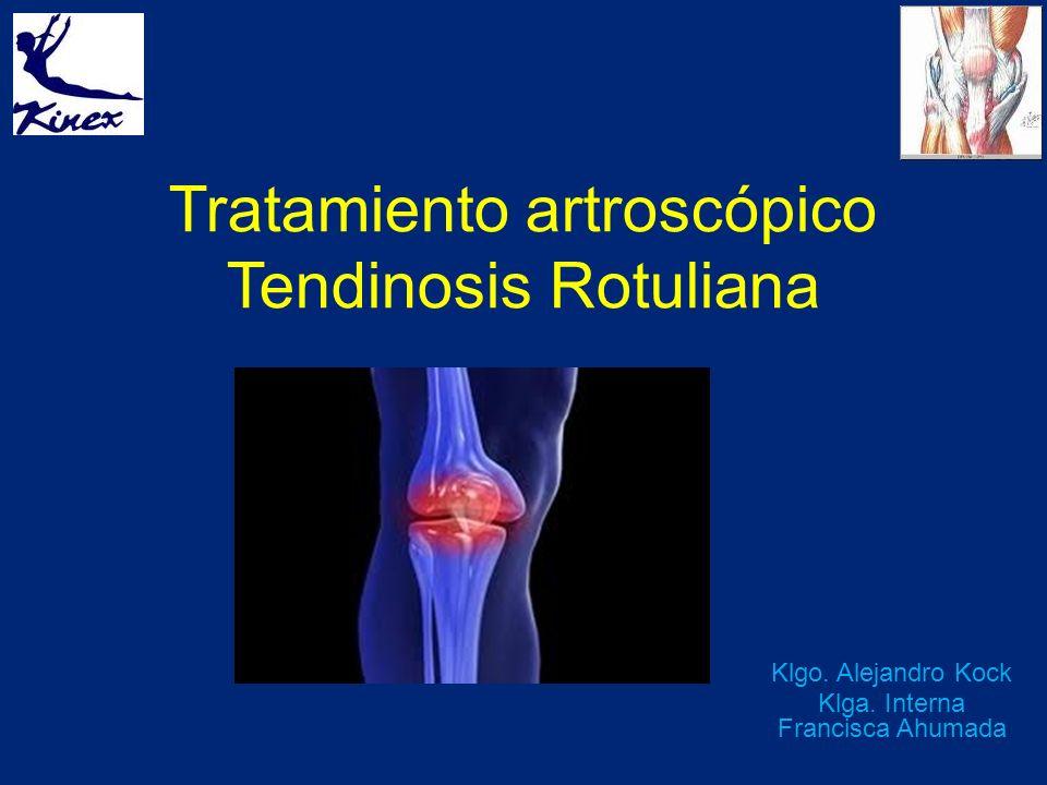 Tratamiento artroscópico Tendinosis Rotuliana