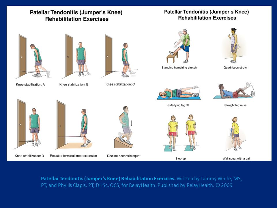 Patellar Tendonitis (Jumper s Knee) Rehabilitation Exercises