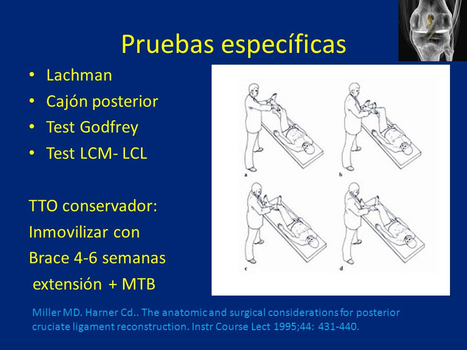 Pruebas específicas Lachman Cajón posterior Test Godfrey Test LCM- LCL