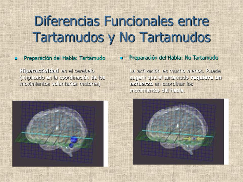 Diferencias Funcionales entre Tartamudos y No Tartamudos