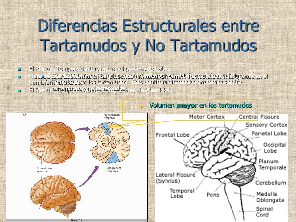 Diferencias Estructurales entre Tartamudos y No Tartamudos