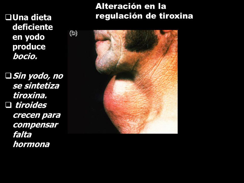 Alteración en la regulación de tiroxina