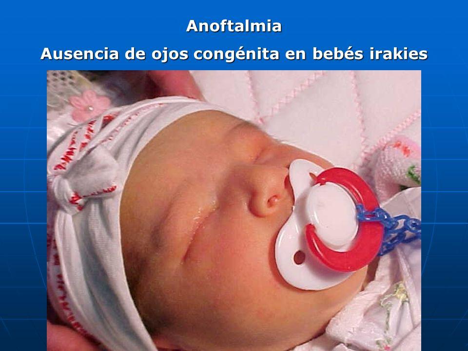 Ausencia de ojos congénita en bebés irakies