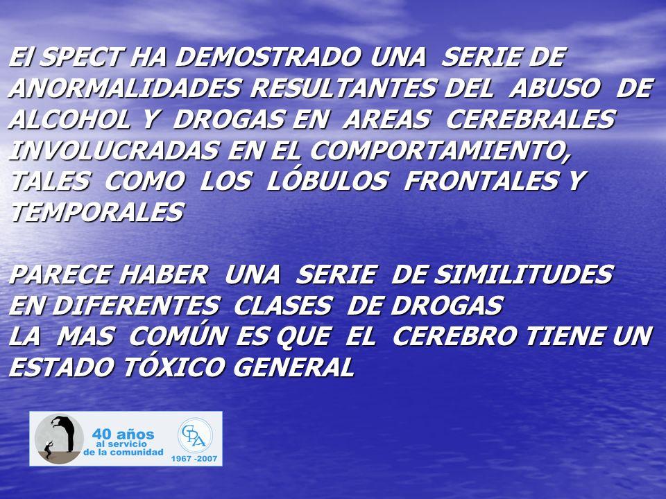 El SPECT HA DEMOSTRADO UNA SERIE DE ANORMALIDADES RESULTANTES DEL ABUSO DE ALCOHOL Y DROGAS EN AREAS CEREBRALES INVOLUCRADAS EN EL COMPORTAMIENTO, TALES COMO LOS LÓBULOS FRONTALES Y TEMPORALES PARECE HABER UNA SERIE DE SIMILITUDES EN DIFERENTES CLASES DE DROGAS LA MAS COMÚN ES QUE EL CEREBRO TIENE UN ESTADO TÓXICO GENERAL