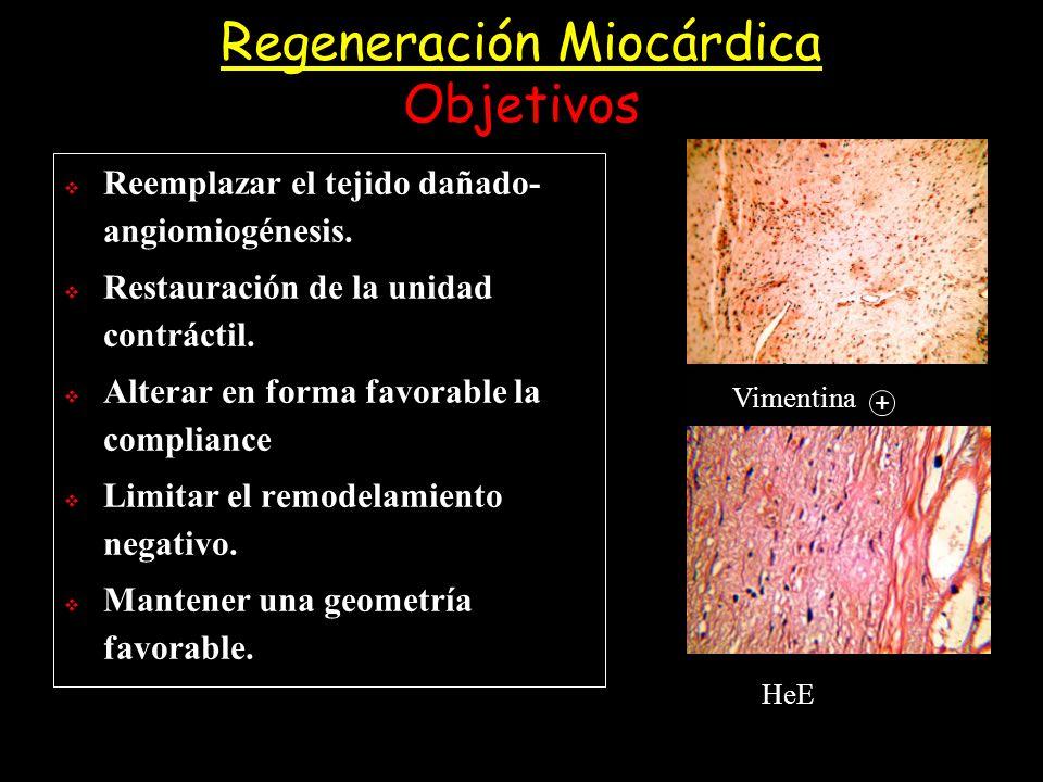 Regeneración Miocárdica Objetivos