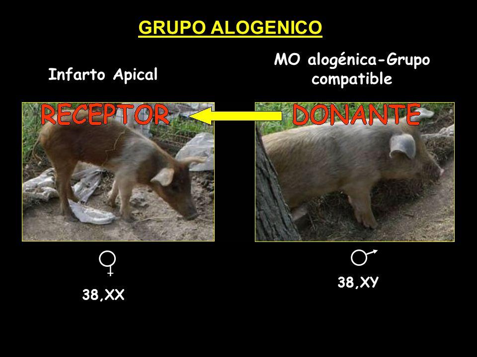 MO alogénica-Grupo compatible
