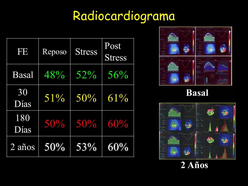Radiocardiograma 48% 52% 56% 51% 50% 61% 60% 53% FE Stress Post Stress