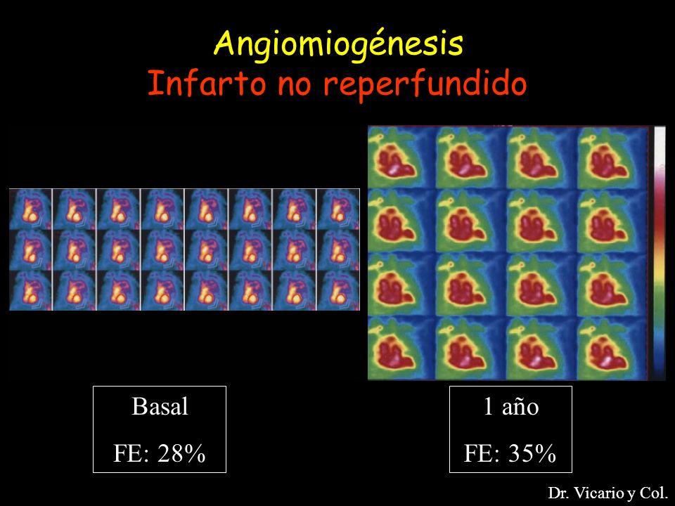Angiomiogénesis Infarto no reperfundido