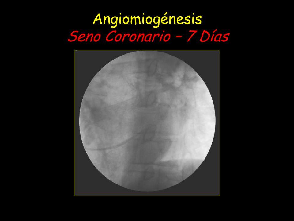 Angiomiogénesis Seno Coronario – 7 Días