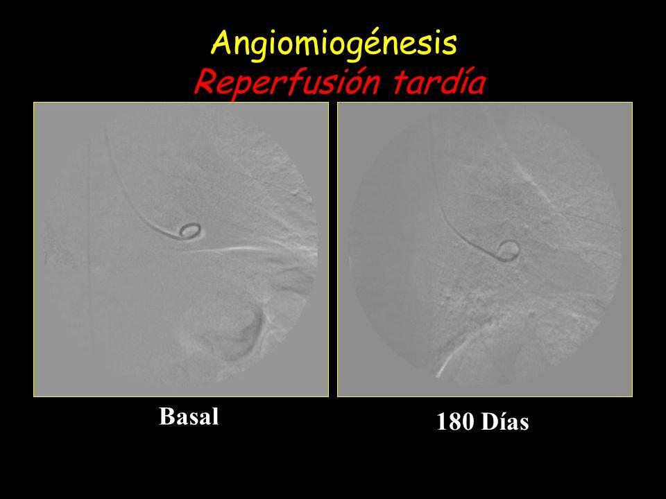 Angiomiogénesis Reperfusión tardía