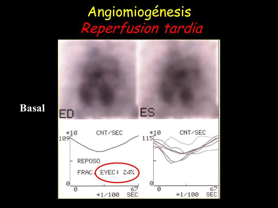 Angiomiogénesis Reperfusion tardia