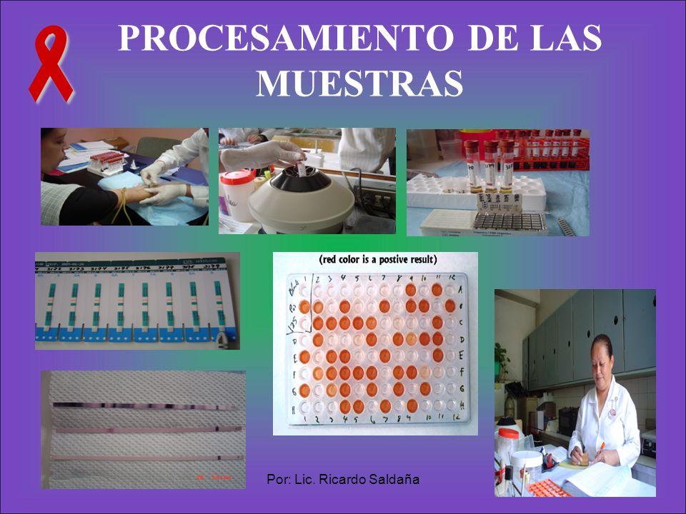PROCESAMIENTO DE LAS MUESTRAS