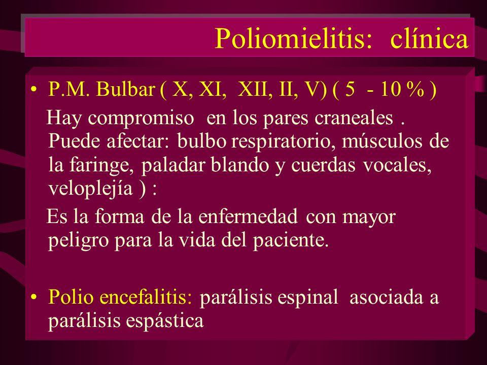 Poliomielitis: clínica