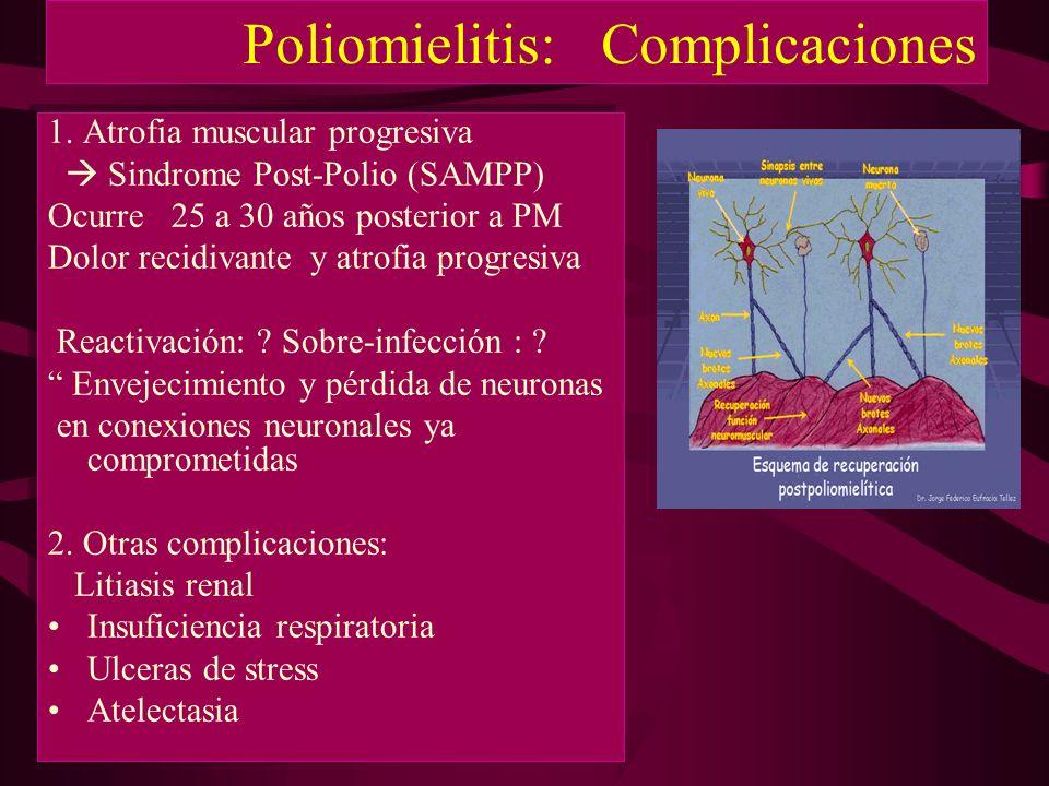 Poliomielitis: Complicaciones