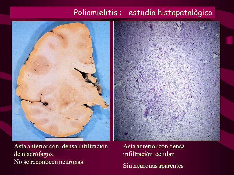 Poliomielitis : estudio histopatològico