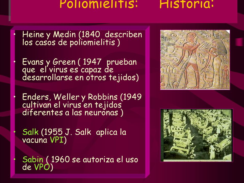 Poliomielitis: Historia: