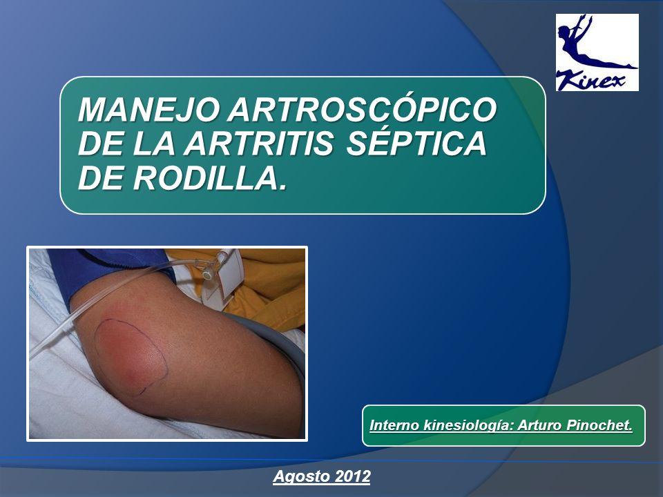 MANEJO ARTROSCÓPICO DE LA ARTRITIS SÉPTICA DE RODILLA.