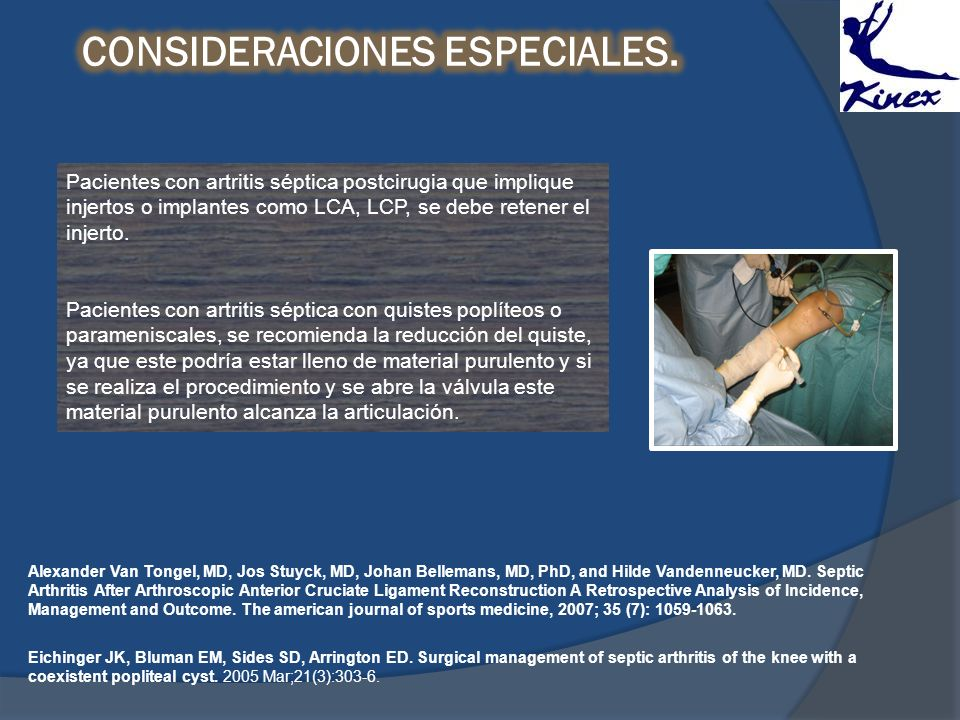 CONSIDERACIONES ESPECIALES.