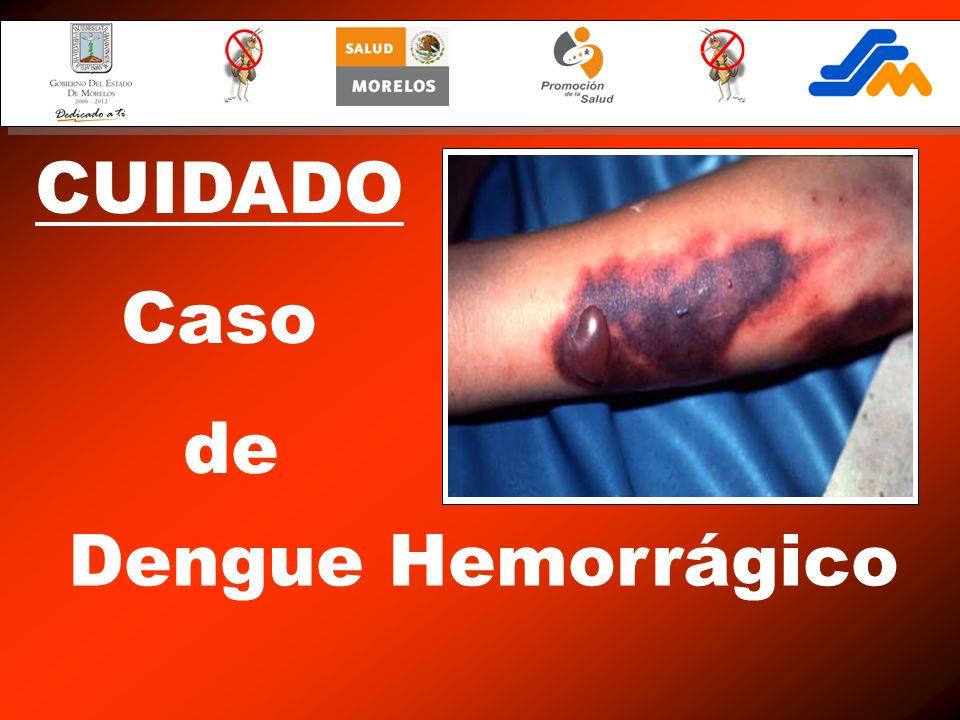 CUIDADO Caso de Dengue Hemorrágico