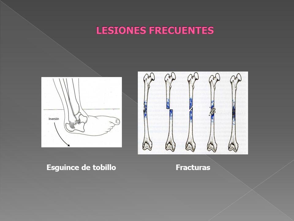 LESIONES FRECUENTES Esguince de tobillo Fracturas