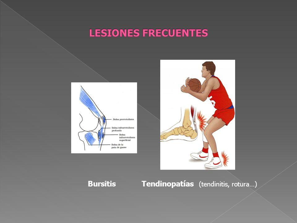 LESIONES FRECUENTES Bursitis Tendinopatías (tendinitis, rotura…)
